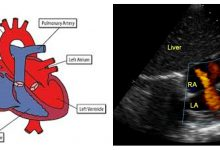 Photo of ECHO CARDIOGRAPHY Sequential segmental analysis