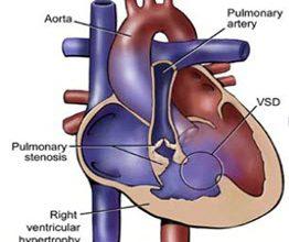 Photo of Congenital Heart Disease