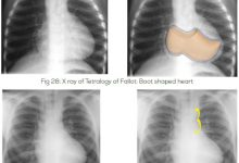 Photo of Chest X-ray