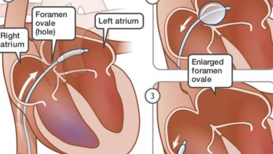 Photo of Balloon Atrial Septostomy