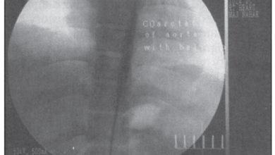 Photo of Balloon Angioplasty in Coarctation of Abdominal Aorta
