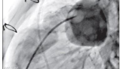 Photo of Percutaneous Pulmonary Valve Implantation (PPVI) with Melody®