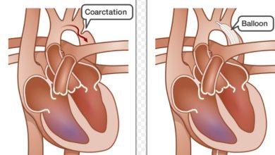 Photo of Coarctation Balloon Angioplasty