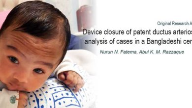 Photo of Device closure of patent ductus arteriosus: analysis of cases in a Bangladeshi centre